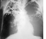 Haya ndiyo makundi hatarishi ya TB inayoua 70 kila siku duniani
