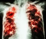 Watu zaidi ya 7,000 wagundulika kuwa na TB