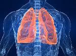 Ugonjwa wa TB