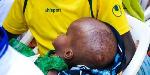 'Tumieni Folic Acid kuepushia watoto mgongo wazi'